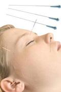Акупунктурный лифтинг - насколько болезненна эта процедура?