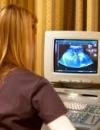 УЗИ матки после родов – контроль процесса восстановления