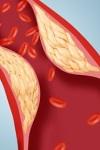 как очистить сосуды от холестерина