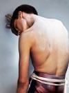 Остеохондроз с корешковым синдромом – самое частое проявление заболевания