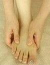 Грибок ногтей на ногах - симптомы можно обнаружить неожиданно