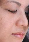 Осложненная катаракта – проблема усугубляется
