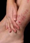 Симптомы псориаза – отличаются большим разнообразием