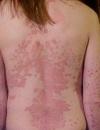 Вульгарный псориаз – самая распространенная форма заболевания