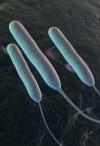 Синегнойная палочка: симптомы наиболее распространенных инфекций