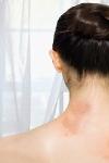 стресс причина аллергической сыпи