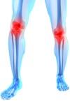 Терафлекс – капсулы для лечения заболеваний суставов