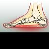Продольное плоскостопие - если вам больно стоять