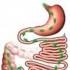 Лечение глистов: каждому червю свое лекарство
