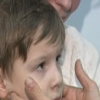 Инфекционный мононуклеоз - болезнь студентов