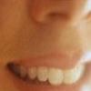 Гингивит - чисткой зубов не обойдетесь