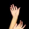 Онемение рук - не такой уж безобидный симптом