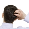 10 способов предотвратить выпадение волос у мужчин