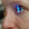 Глаукома - операция по восстановлению оттока внутриглазной жидкости