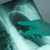 Саркоидоз легких – самая частая форма заболевания