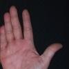 Ладонно-подошвенный псориаз – локальное поражение