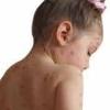 Герпес на спине – какая может быть опасность для здоровья