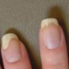 Псориаз ногтей – особенности лечения и ухода
