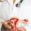 Пайпель биопсия эндометрия – безопасно и безболезненно