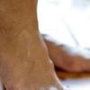 Лечение грибка ногтей на ногах народными средствами – безопасная медицина