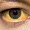 Желтуха - если глаза подозрительно блестят
