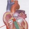 Утолщение межжелудочковой перегородки – чем чревато для организма