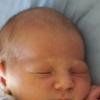 Причины желтушки у новорожденных – переизбыток билирубина