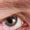 Симптомы отслоения сетчатки – нужно знать всем