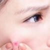 Фурункулез – причины в проникающей инфекции