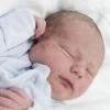 Родимые пятна у новорожденных – необходимо тщательное наблюдение