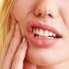 Альвеолит после удаления зуба – результат инфицирования ранки