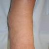 Лимфостаз нижних конечностей – заболевание, которое встречается все чаще