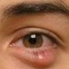 Халязион - лечение должен проводить офтальмолог