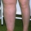 Медикаментозное лечение лимфостаза нижних конечностей – предпринимаемые меры