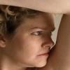 Гидраденит под мышкой – «сучье вымя»