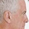 Гипертрихоз ушной раковины – почему появляется волосатое ухо?