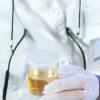 Гемотест: общий анализ мочи для уточнения диагноза