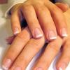 Как избавиться от шелушения ногтей – от причины к следствию