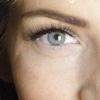 Белые круги под глазами: из-за чего возникают и как их устранить
