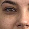 Почему под глазами темные круги появляются: лечение зависит от причины