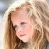 Круги под глазами у ребенка – что должны знать родители